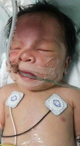 anak meninggal komplikasi jantung