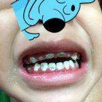 gigi rosak