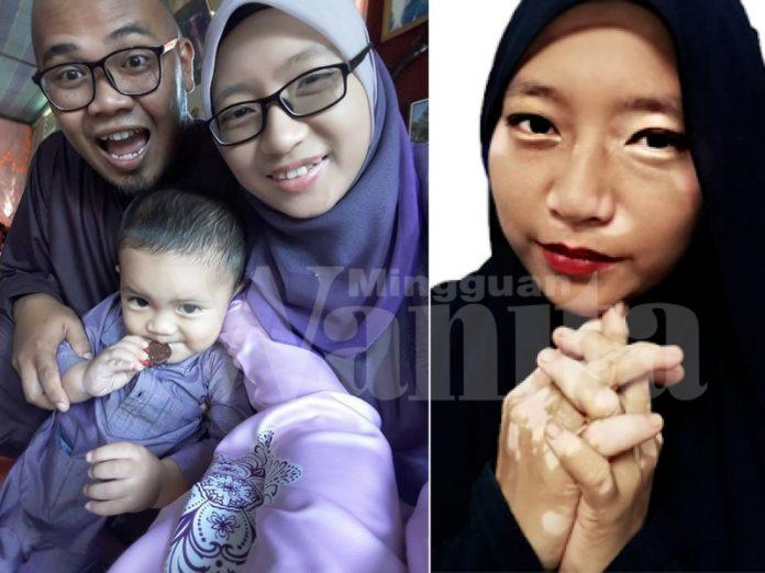 Dihina, Ditolak Dari Berkahwin Kerana Vitiligo @ Sopak, Akhirnya Jejaka PALAPES Ini Jadi Penyelamat