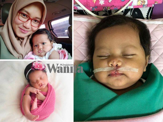Alhamdulillah Pembedahan Sumbing Baby Xandra Dah Selesai, Ini Doa Lan Solo Untuk Anaknya