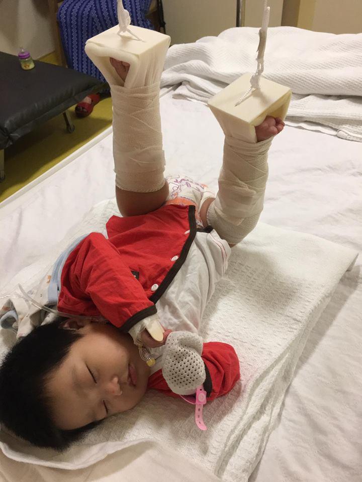 kaki anak patah