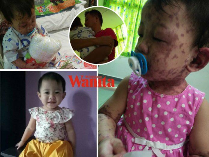 'Aisyah Kuat Sikit Ya, InsyaAllah Cantik Macam Dulu' Tolong Doakan Bayi 17 Bulan Ini Dapat Lawan Trauma