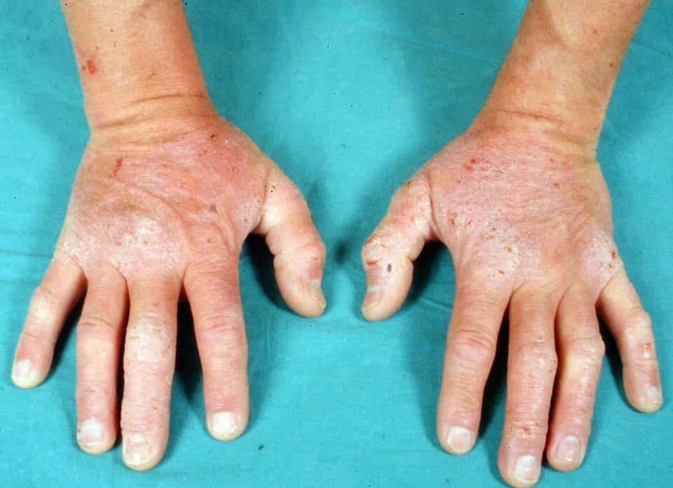 Bila Confirm Ada Penyakit 'Kulit Gatal', Cegahlah Pencetus Ekzema Ikut Saranan Doktor