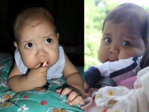 hilang tiga anak akibat masalah genetik
