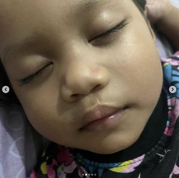 'Alhamdulillah.. Bibir Xandra Cantik Kejadiannya' Begini Sheila Urus Parut Sumbing Anak