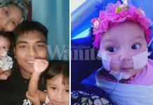 Anak Ali Puteh Bergantung Bantuan Pernafasan, Alami Kompilkasi Paru-paru Selepas Pembedahan