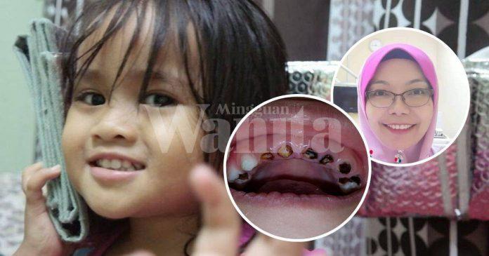 Tidur Sambil Hisap Susu, Kongsi Sudu, Inilah Punca Karies Gigi Anak