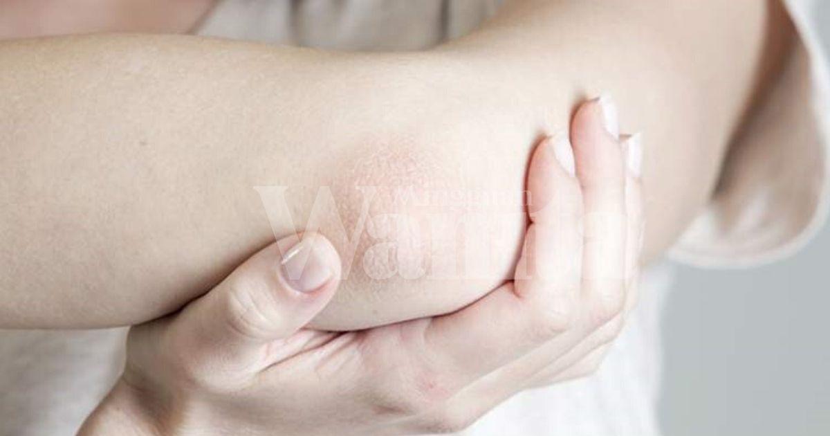 Kata Doktor Ini, Tanpa Rawatan Artritis Psoriatik Mampu Akibatkan Kehilangan Upaya