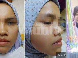 Pakai Braces Lebih Tiga Tahun, Sudahnya Bengkak Muka, Gigi Rosak Teruk