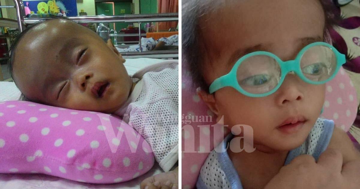 Dalila Derita Holoprosencephaly.Hanya Mampu Terbaring, Mata Pula Tak Nampak